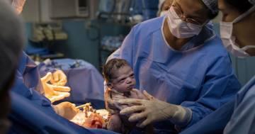 Appena nata è già arrabbiata con il medico: le foto fanno il giro del mondo