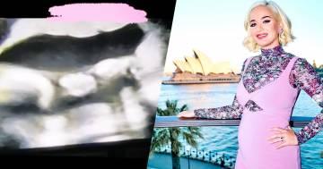 """Katy Perry mostra il video della sua ecografia: """"Mia figlia mi ha fatto il dito medio"""""""