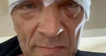 Brutto incidente in moto per Vincent Cassel: ecco il suo messaggio su Instagram