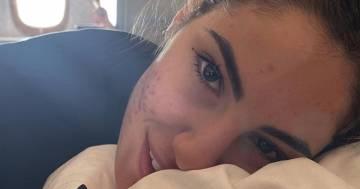 Giulia De Lellis senza trucco e la confessione sull'acne