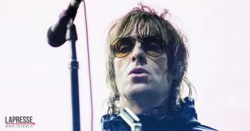 Liam Gallagher cade dall'elicottero e si ferisce il volto: la foto condivisa per i fan